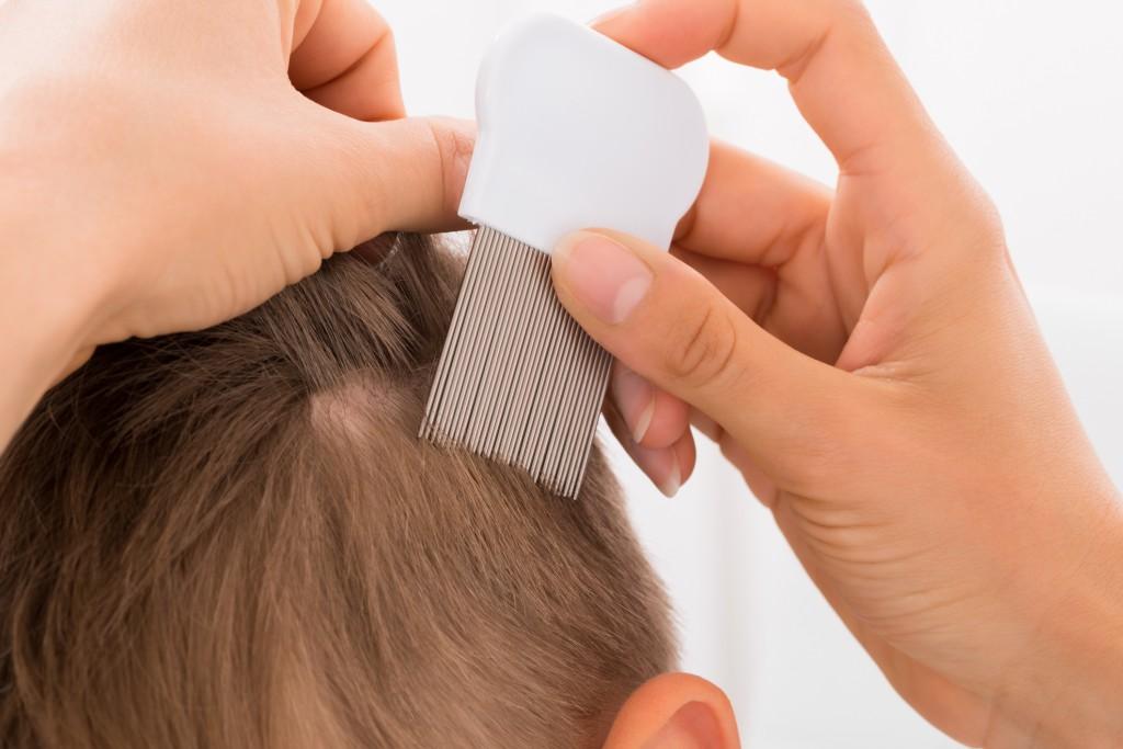 Cómo prevenir y eliminar los piojos | HCMN