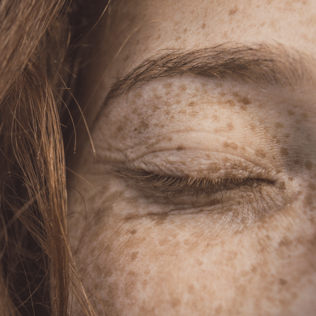 piel tras el verano   HCMN